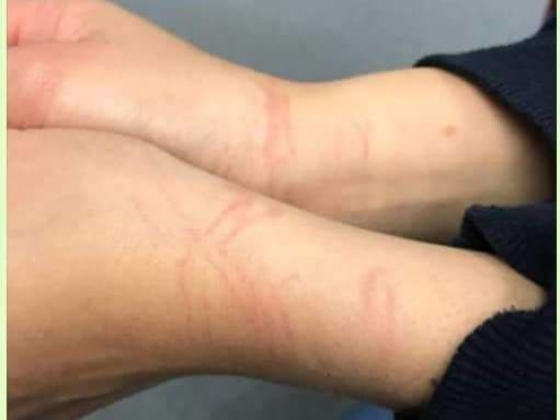 Marks From Cesar Gebara's Abuse